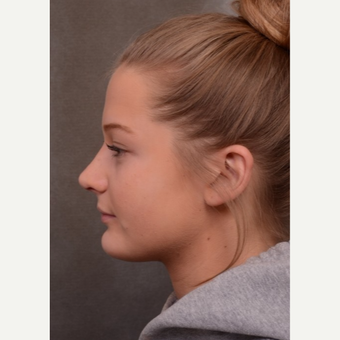 17 or under year old woman treated with Rhinoplasty after 3530496