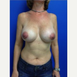 Breast Augmentation after 3743714