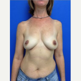 Breast Augmentation before 3743714