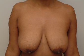 31 year old woman with droopy breasts.