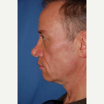35-44 year old man treated with Cheek Augmentation before 2120696
