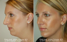 Rhinoplasty and Chin Implant before 91920