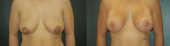 Breast Lift and Augmentation before 529925
