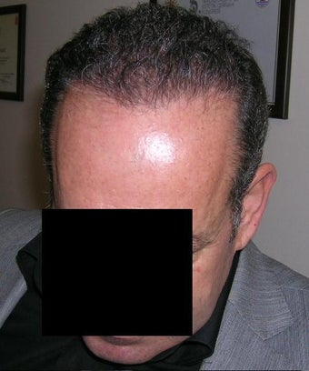 Hair  Transplantation with power FUE Technique after 568775