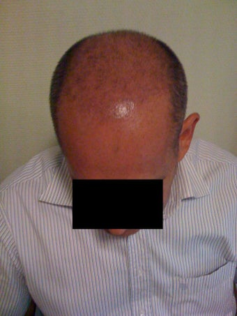 Hair  Transplantation with power FUE Technique 568775