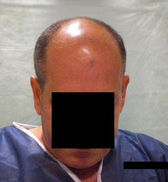 Hair  Transplantation with power FUE Technique before 568775