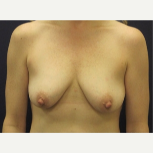 25-34 year old woman treated with Breast Lift before 3109517