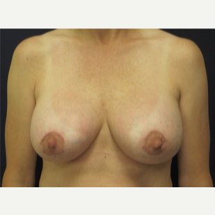 25-34 year old woman treated with Breast Lift after 3109517