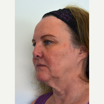 65-74 year old woman treated with Ultherapy before 3332675
