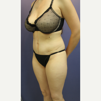 25-34 year old woman treated with Tummy Tuck after 3286568