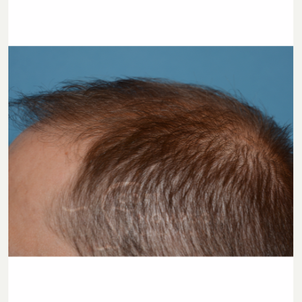35-44 year old man treated with Hair Loss Treatment after 3724387
