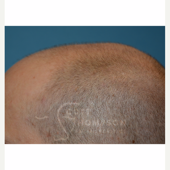 35-44 year old man treated with Hair Loss Treatment before 3724387