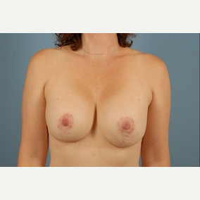 45 year old woman treated with Breast Lift with Implants after 3840008