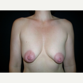 45 year old woman treated with Breast Lift with Implants before 3840008