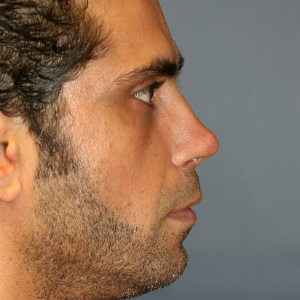 35-44 year old man treated with Revision Rhinoplasty after 3559741