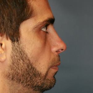 35-44 year old man treated with Revision Rhinoplasty before 3559741