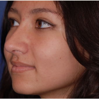 18-24 year old woman treated with Rhinoplasty after 3624045
