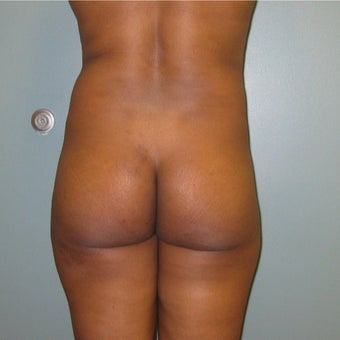 40 year old woman treated with Brazilian Butt Lift before 1866200
