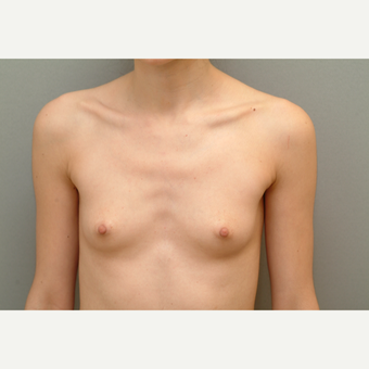 25-34 year old woman treated with Breast Implants before 3732409
