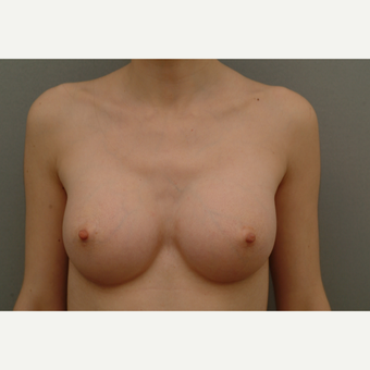 25-34 year old woman treated with Breast Implants after 3732409