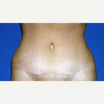 25-34 year old woman treated with Tummy Tuck after 3009847