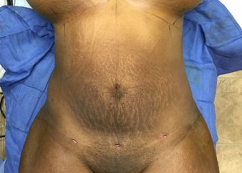 35-44 year old woman treated with Smart Lipo after 3286931