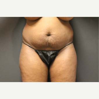 35-44 year old woman treated with Smart Lipo before 3286931