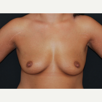 25-34 year old woman treated with Breast Implants before 3650774