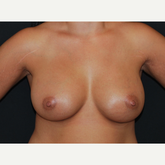 25-34 year old woman treated with Breast Implants after 3650774