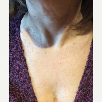 55-64 year old woman treated with Ultherapy after 3459912