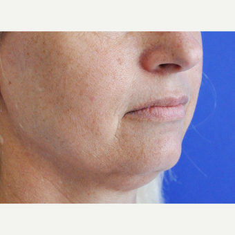 45-54 year old woman treated with Lip Augmentation before 3240205