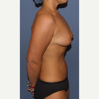 25-34 year old woman treated with Breast Lift with Implants before 3512203