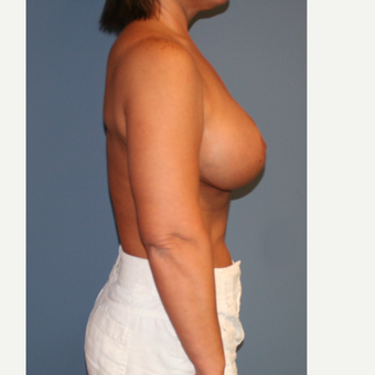 25-34 year old woman treated with Breast Lift with Implants after 3512203