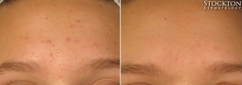 18-24 year old woman treated with LED Skin Treatment before 2103343