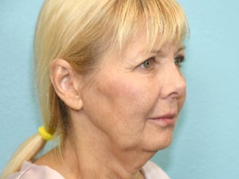 55-64 year old woman treated with Facelift before 3577951