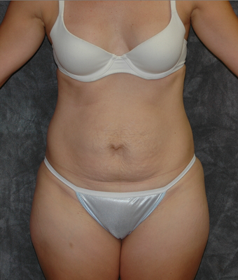Tummy Tuck before 929482
