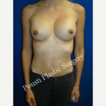 25-34 year old woman treated with Breast Implant Revision after 3334274