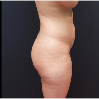 25-34 year old woman treated with Butt Augmentation before 3267018