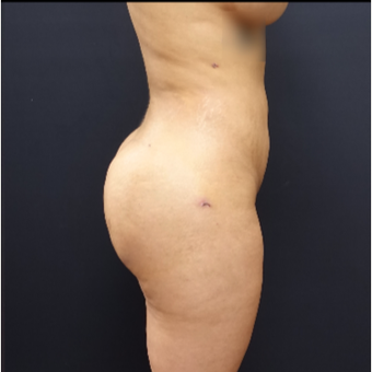 25-34 year old woman treated with Butt Augmentation after 3267018