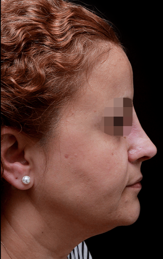 35-44 year old woman treated with Rhinoplasty after 3204710