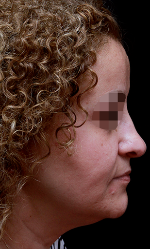 35-44 year old woman treated with Rhinoplasty before 3204710