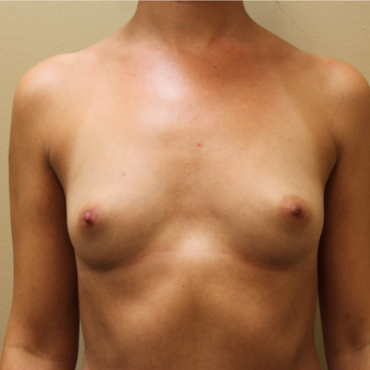 Bilateral Transaxillary Subpectoral Breast Augmentation with Silicone Implants before 3418494