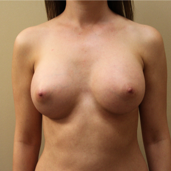 Bilateral Transaxillary Subpectoral Breast Augmentation with Silicone Implants after 3418494