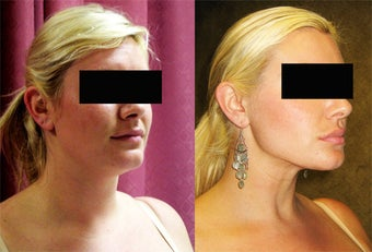 neck liposuction before 232502