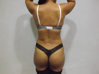 Liposculpture full back waist and flanks