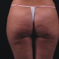 35-44 year old woman treated with Exilis before 1570560