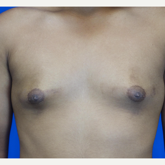 18-24 year old man treated with Male Breast Reduction before 3542881