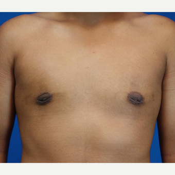 18-24 year old man treated with Male Breast Reduction after 3542881