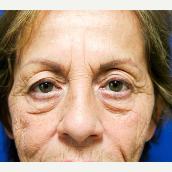 65-74 year old woman treated with Eyelid Surgery before 3093910