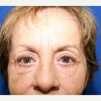 65-74 year old woman treated with Eyelid Surgery after 3093910